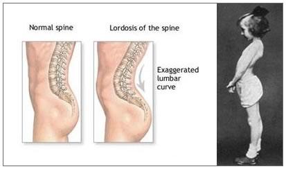lumbar lordosis