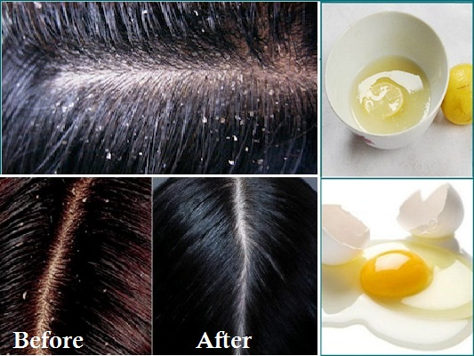 How to Remove Dandruff Permanently and Naturally – DIY – Hom