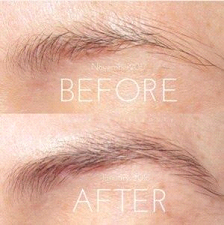 Why should you use an eyebrow growth serum?