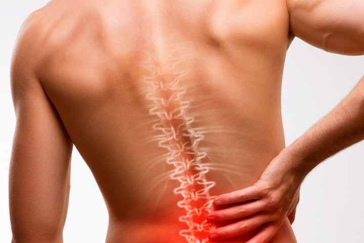 Homeopathy treatment for spondylitis