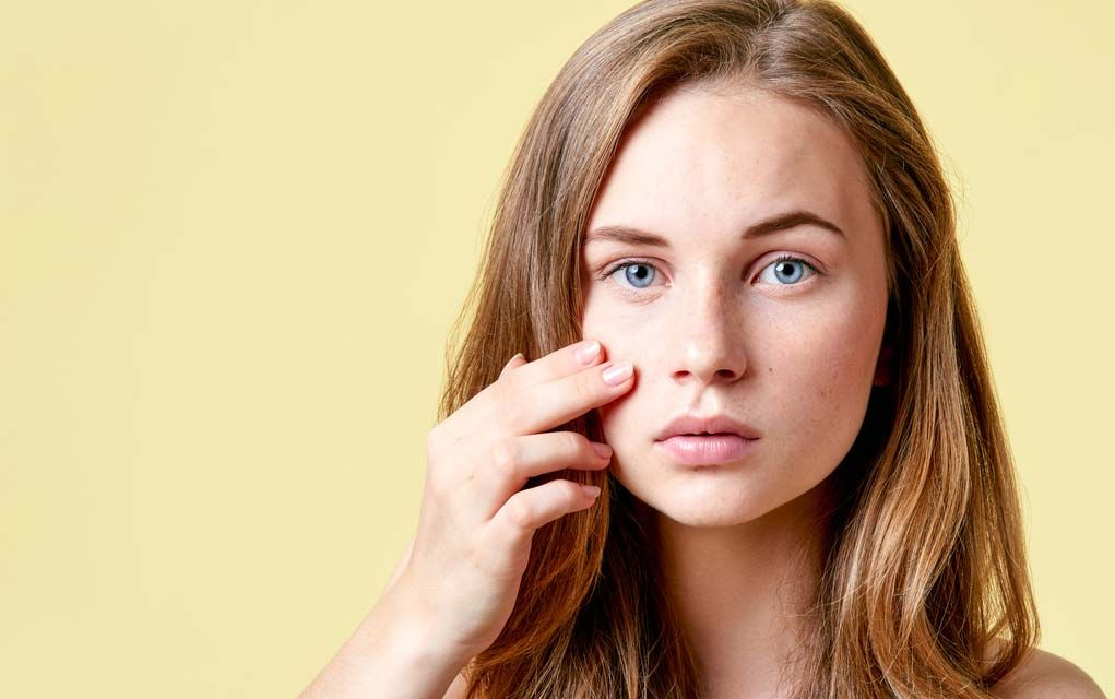Acne treatment in Mumbai, Best dermatologist in Mumbai